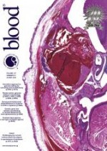 Role of platelets, neutrophils, and factor XII in spontaneous venous thrombosis in mice
