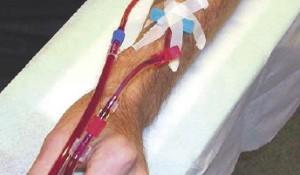 Vaattoegang/ Vascular access