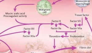 Cancer and thrombosis